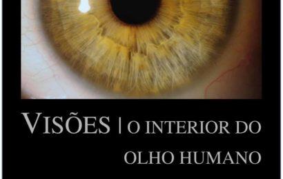 """Museu Francisco de Lacerda promove exposição """"Visões: o interior do olho humano"""" – Ilha de São Jorge"""
